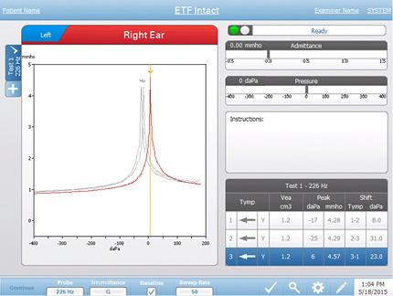TympStar Pro Middle-Ear Analyzer ETF