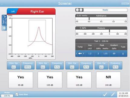 TympStar Pro Testing Screener